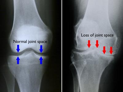 Distrugerea articulației artroze, Probleme comune cum să tratezi