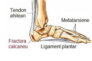 Durere în articulațiile gleznei decât pentru a trata - Artroza – ce este, tratament si simptome