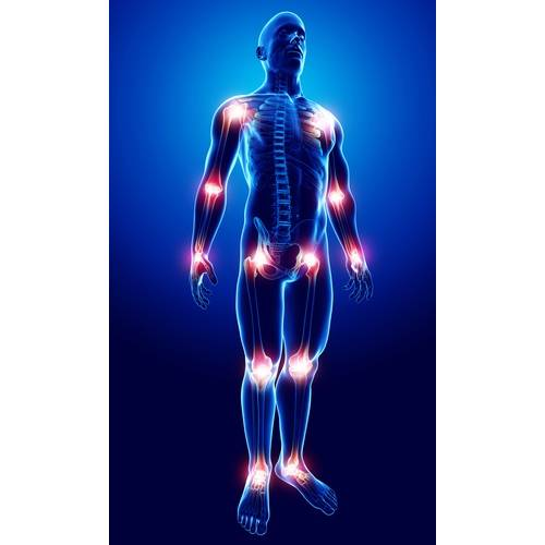 Artrita reumatoida (reumatismul) si osteoartrita: Cauze si tratamente   thecage.ro