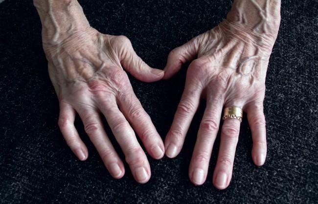 simptomele artritei în brațe)