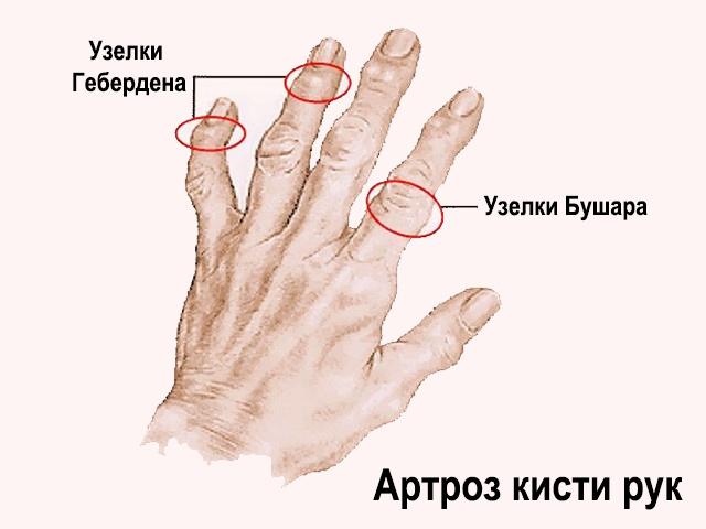 tratament cu scafoizi)