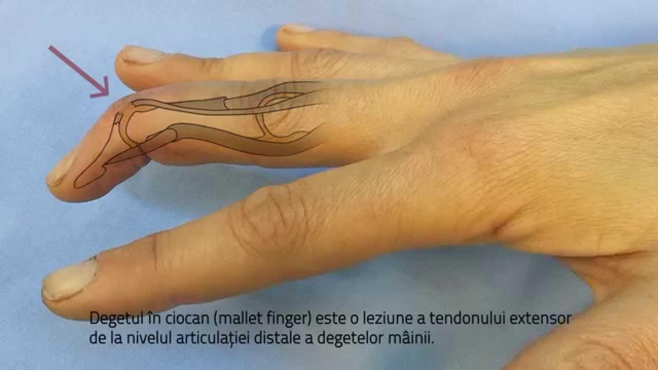 leziunea articulației degetului mijlociu)