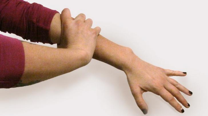 dacă articulația doare pe mână)