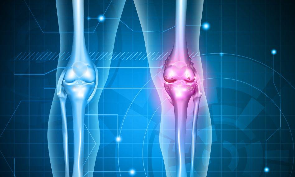 nou în tratamentul artrozei genunchilor