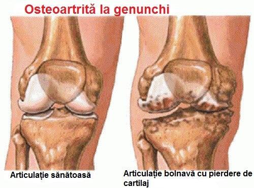 dureri articulare în timpul aritmiei