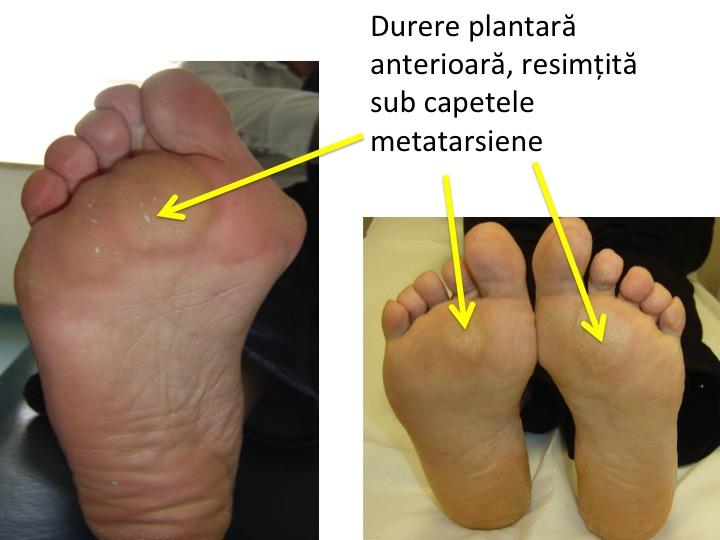 dureri articulare tarsal-metatarsiene