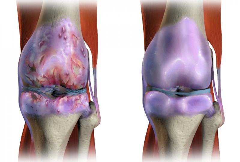 vindeca orice durere articulară decât articulațiile sub fesă rănite