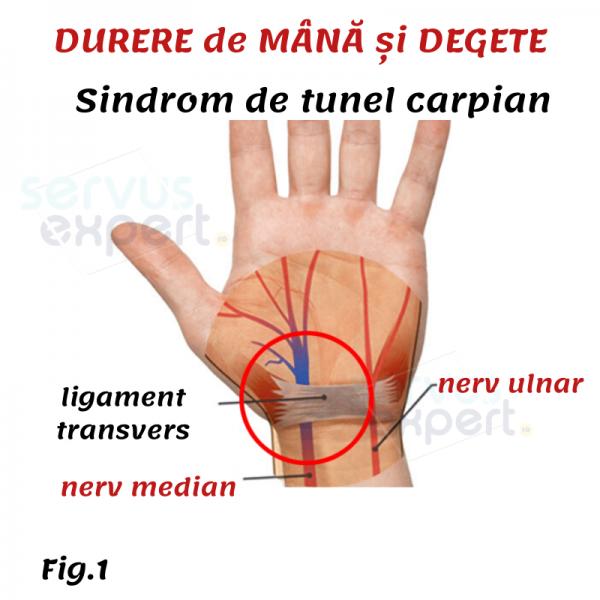 durere bruscă în articulația degetului mare)