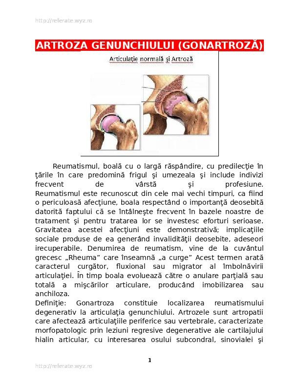 de la ce începe artroza articulației genunchiului