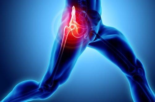 atac de artroză la șold)