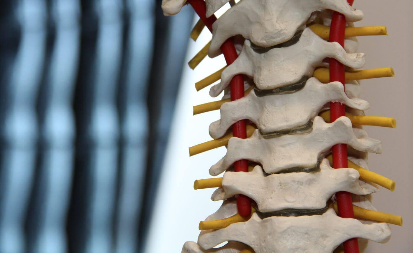 cum se tratează coloana vertebrală și articulațiile)