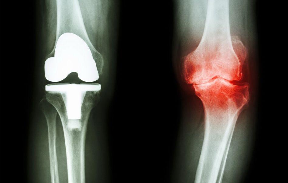 condrogard în artroza genunchiului