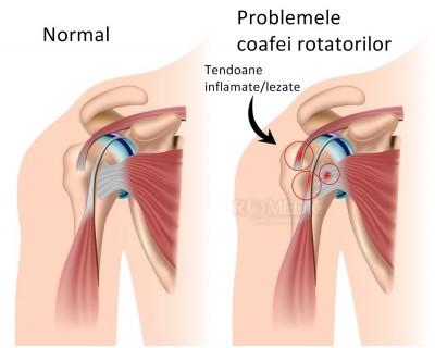 tendinoza bolii articulare dureri articulare la coate și umeri