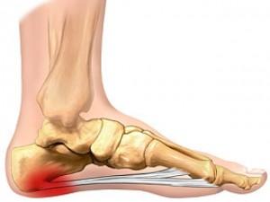 adâncit deasupra articulației piciorului ce este