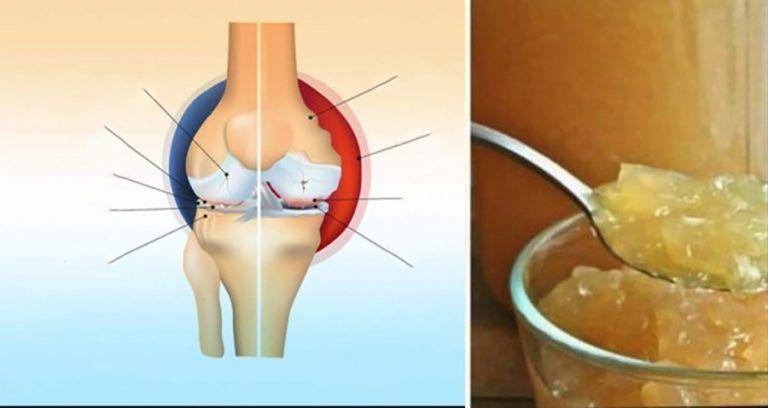 cutii de durere articulare