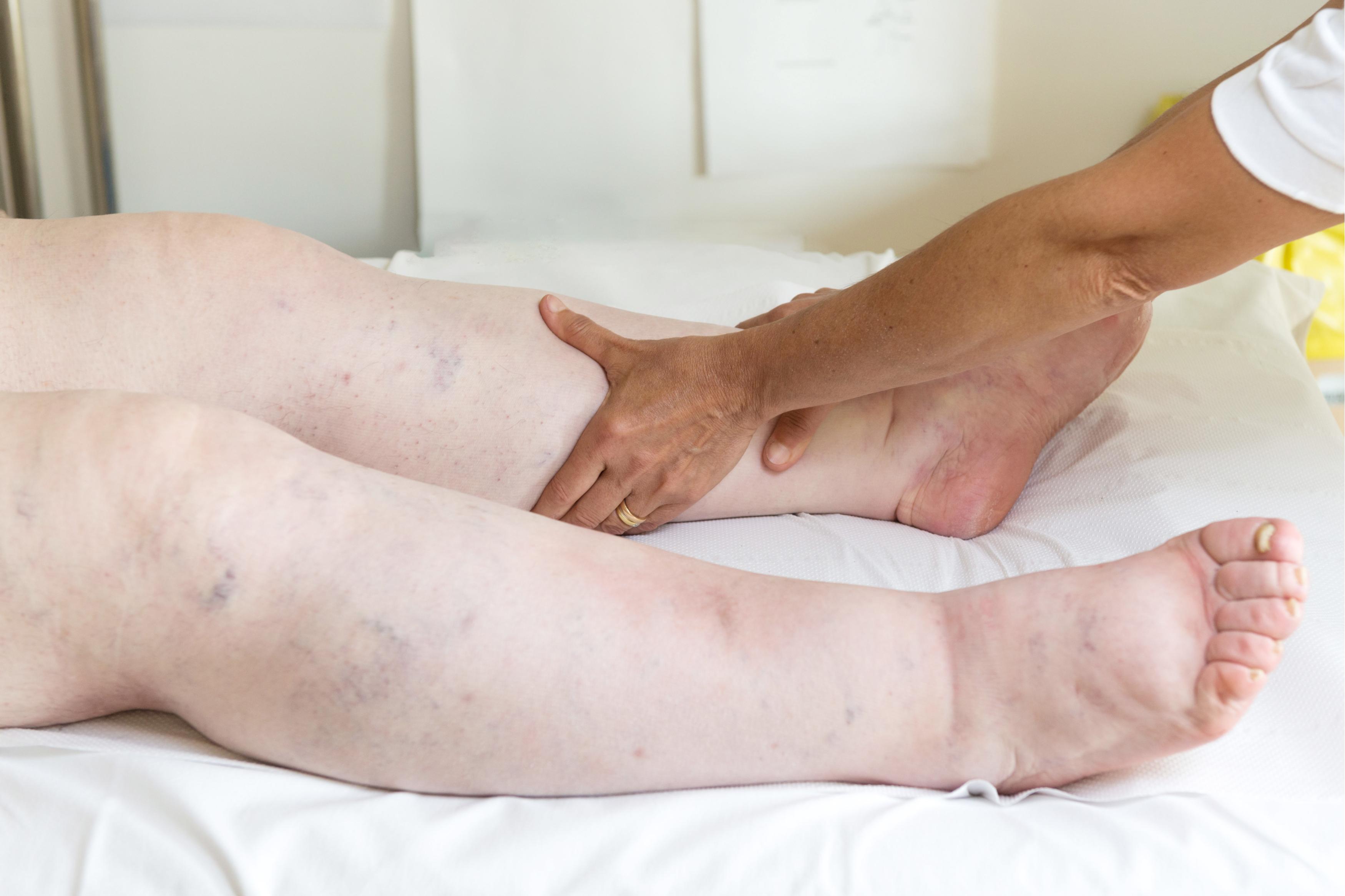 picioare umflate cauza tratament pentru deformarea artrozei gleznei