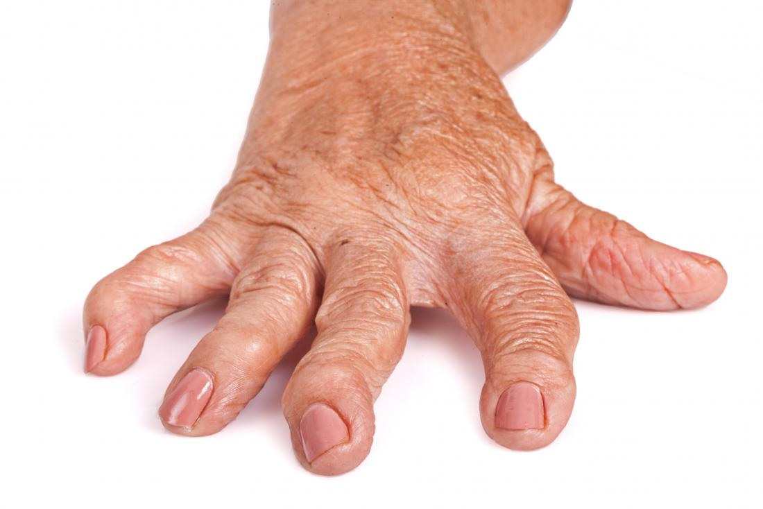 cot medicamente pentru tratamentul artritei