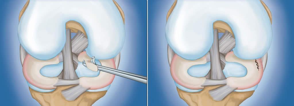 exfolierea cartilajului în tratamentul articulației genunchiului mărirea durerilor articulare hepatice