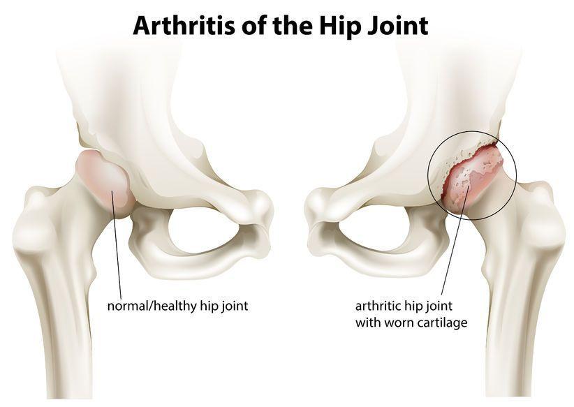 tratamentul artritei în articulația șoldului