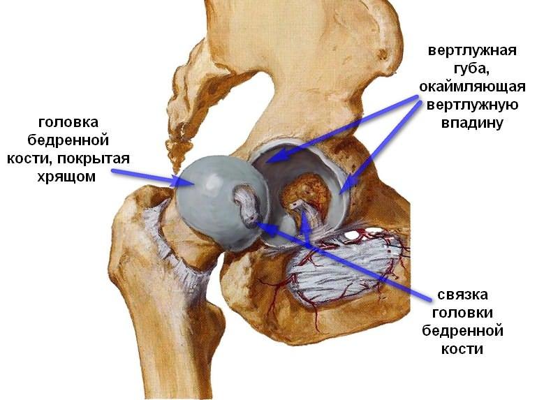 durere nevralgică a articulației șoldului)