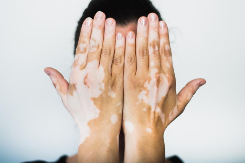 pete pe piele cu boli articulare)