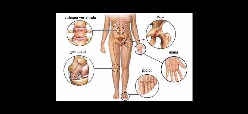 Boală articulară simultană. Meniu cont utilizator