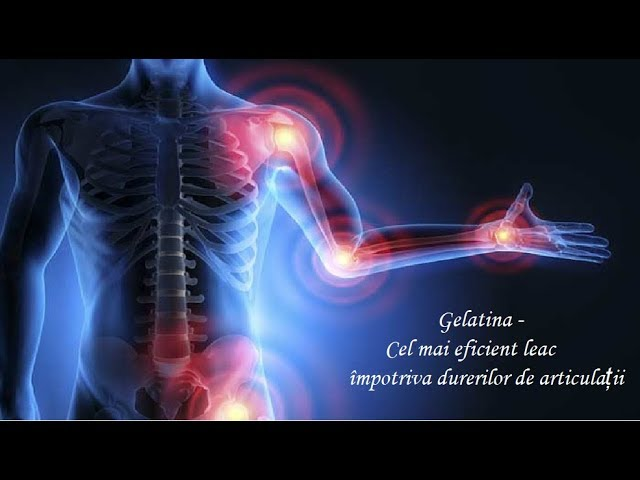 40+ Best Leacuri boli images in   sănătate, remedii naturiste, sfaturi pentru sănătate