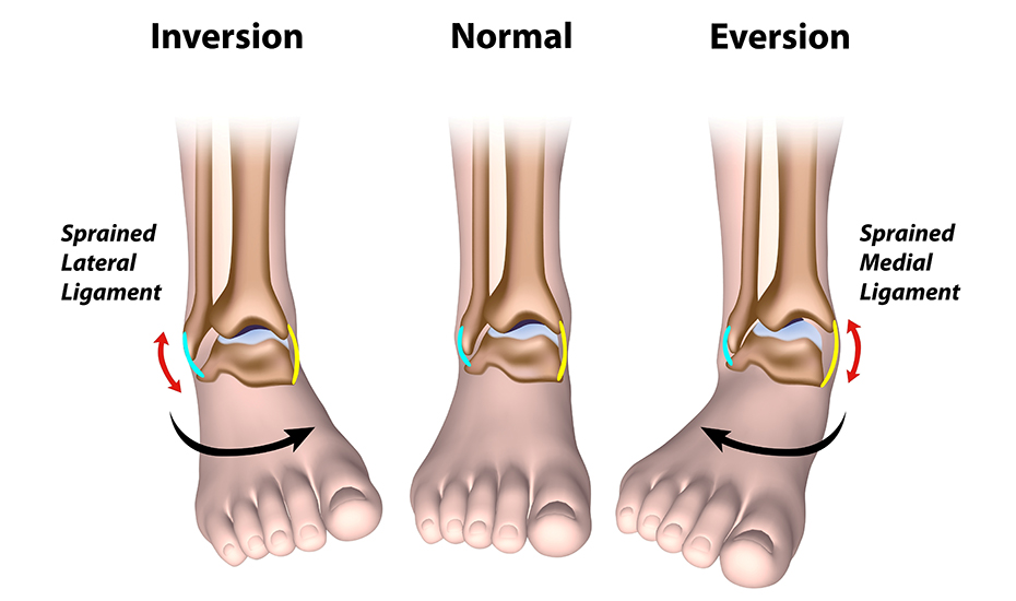 Tratamentul entorsei și ruperea ligamentelor articulației umărului - Entorsa - Ortopedie ArcaLife