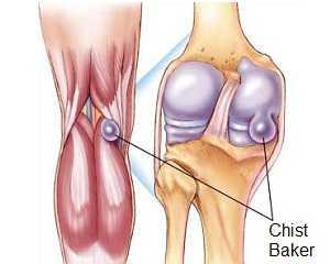 tratamentul bursitei infecțioase a genunchiului