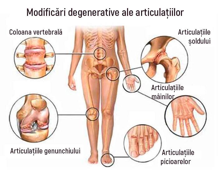 articulațiile picioarelor din zona pelvină dureri de articulații ale brațelor și picioarelor