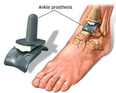 artroza articulației piciorului stâng