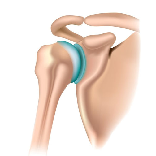 artroza articulației umărului clavicular)