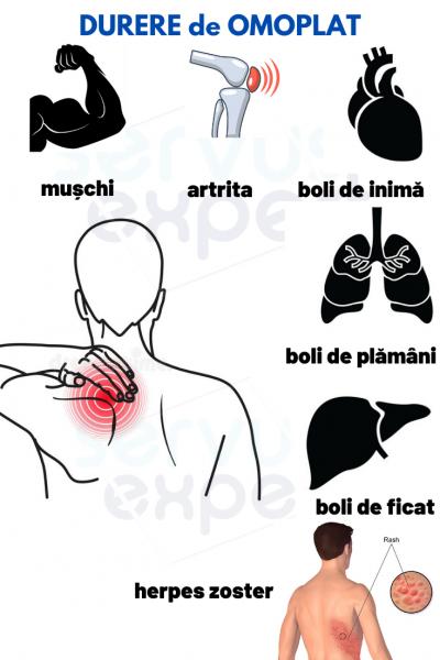 Cum să alinați durerea în omoplat