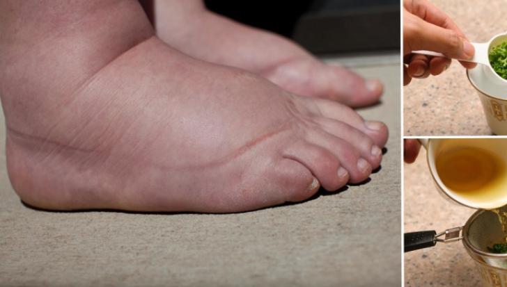 picioare umflate si rosii tratament complex al articulațiilor cu condroprotectoare