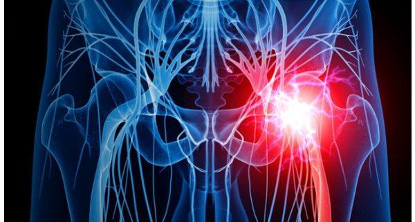 Muschiul șoldului doare