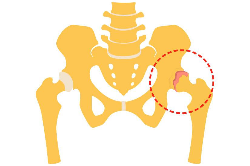 simptome de leziuni la nivelul șoldului)