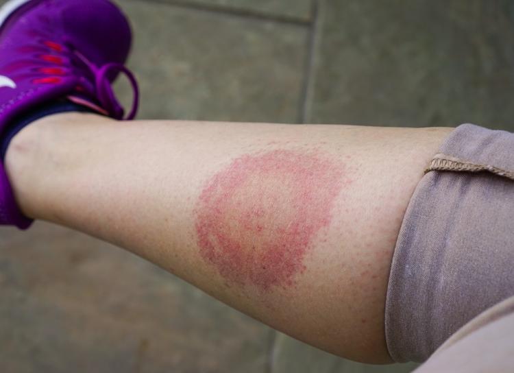 tratarea leziunilor articulare cu perie pastile atunci când articulațiile doare