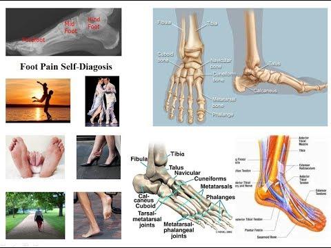 Dureri de glezne și degetele de la picioare - Subiecte în Health