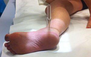 Fractura osului scafoid | Consultatie Ortopedie
