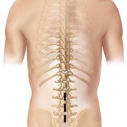cum se tratează coloana vertebrală și articulațiile