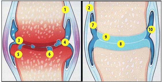 descoperire în tratamentul artrozei