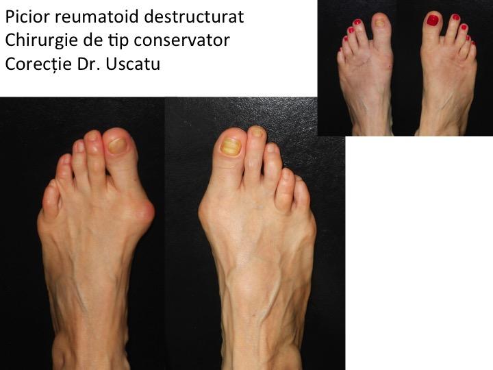 artrita psoriazică a degetelor de la picioare ce unguent să folosească pentru osteochondroză