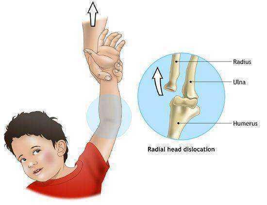 injecții de dureri articulare dureri articulare sub cot cu