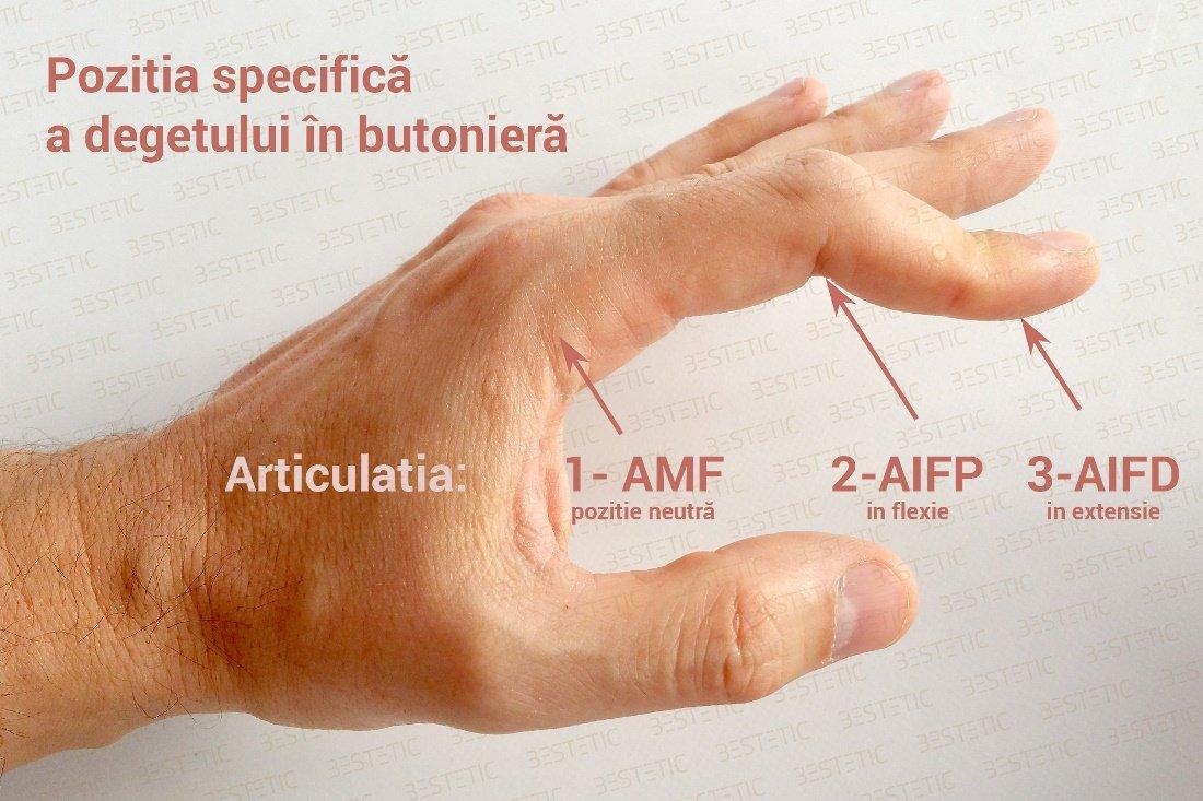 articulația umflată pe deget)