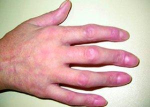 boli sistemice ale examinării medicale a țesutului conjunctiv