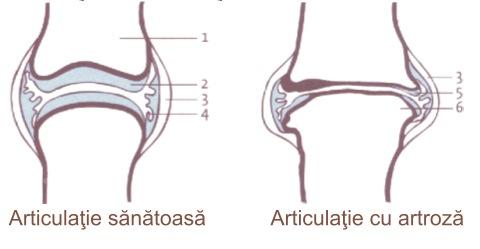 tratamentul reumatismului articulațiilor genunchiului plante medicinale pentru artroza articulației încheieturii