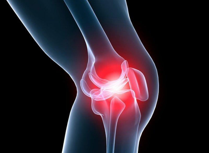 artroza exacerbării genunchiului după tratament