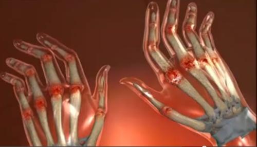 comprimate pentru dureri articulare cu artrită)