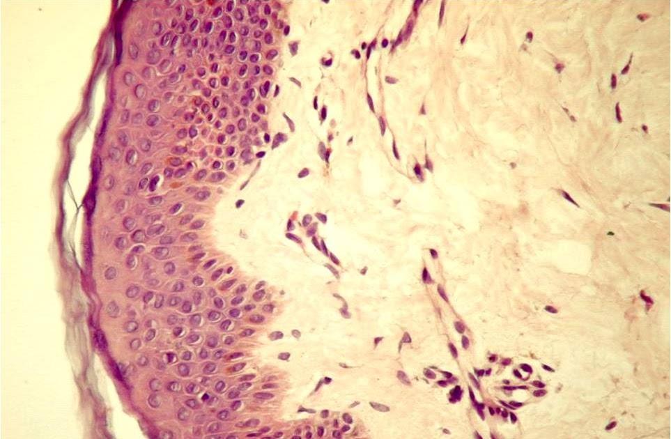 regenerarea țesutului conjunctiv fibros liber)