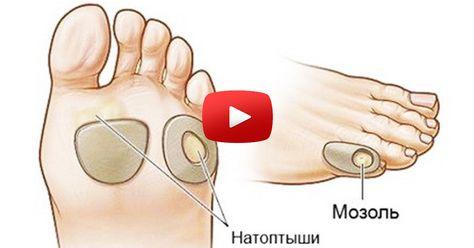 retete de artrita pe mana